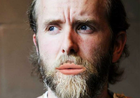 Varg Vikernes with Lana Del Rey lips